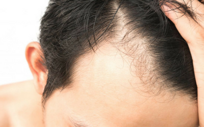 Hair-loss-treatment-in-pune