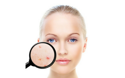 acne-treatment-in-pune