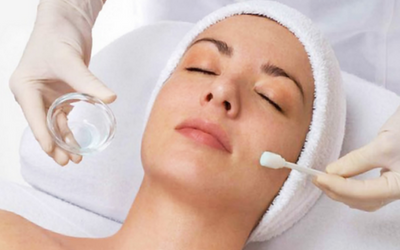 chemical-peel-treatment-in-pune