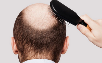pro-grow-hair-treatment-in-pune